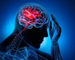 22 de julio día mundial del cerebro ¿Cómo tratarlo a tiempo?