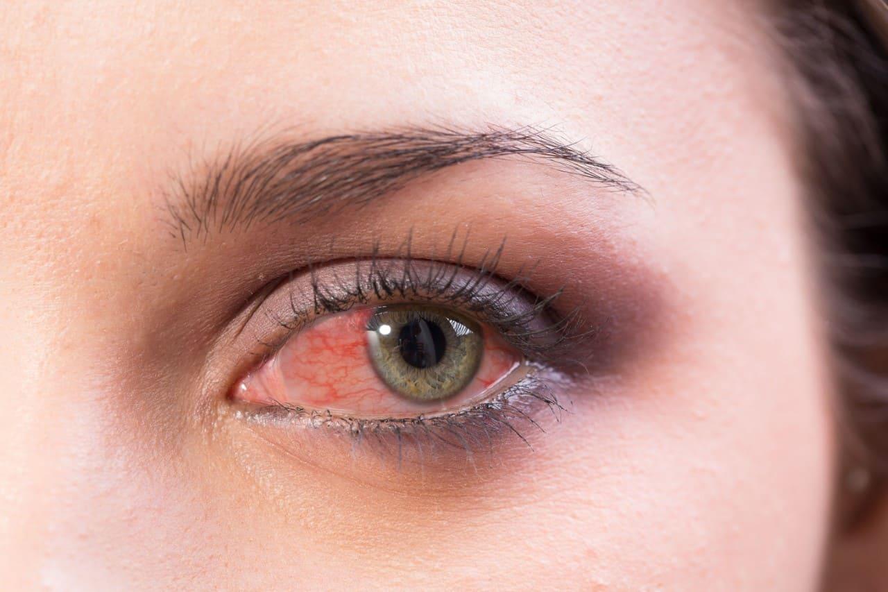 ¿Cuándo preocuparse por el Ojo Rojo? Conoce sus principales causas y signos de alerta