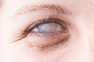 Catarata, una de las patologías visuales más comunes: conozca sus signos de alerta
