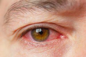 ¿Qué son las alergias oculares? y ¿Cuáles son sus causas, síntomas y tratamiento?
